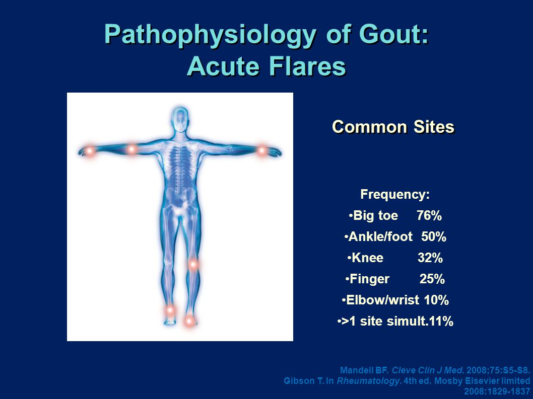 Pathophysiology of Gout: Acute Flares Common Sites Frequency: Big toe 76% Ankle/foot 50% Knee 32% Finger 25% Elbow/wrist 10% >1 site simult.11% Mandell BF.