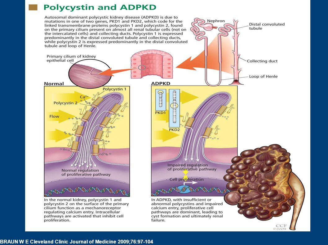Polycystin and ADPKD. BRAUN W E Cleveland Clinic Journal of Medicine 2009;76:97-104