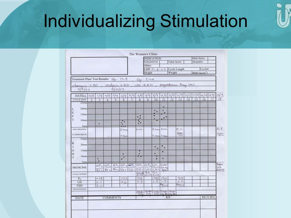 Individualizing Stimulation