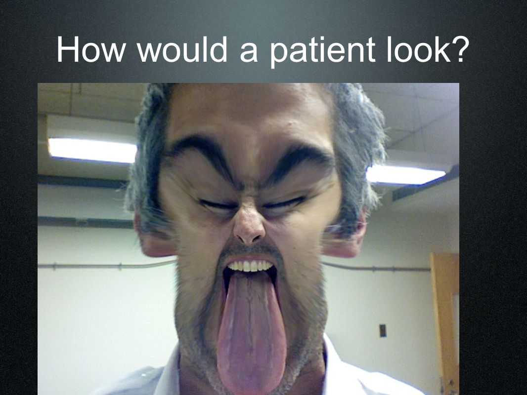How would a patient look?