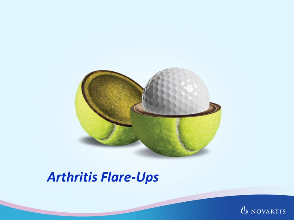 Arthritis Flare-Ups