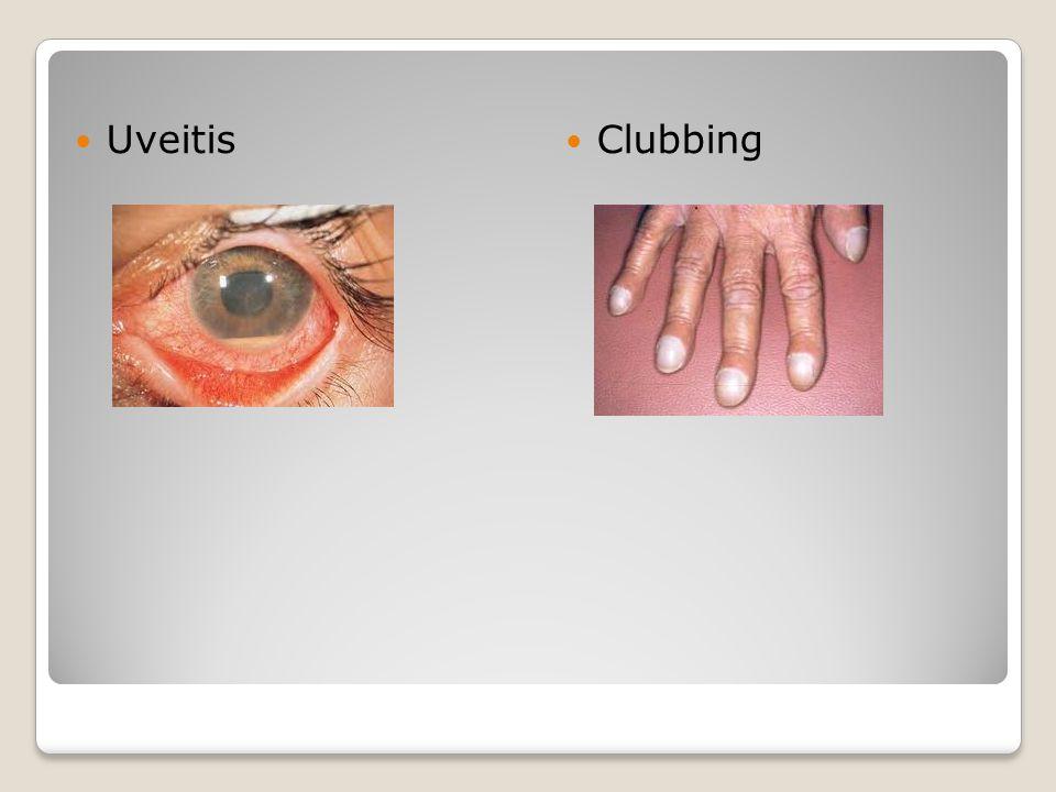 Uveitis Clubbing