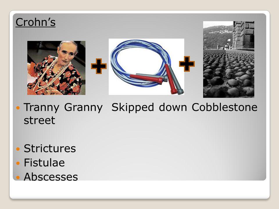Tranny Granny Skipped down Cobblestone street Strictures Fistulae Abscesses