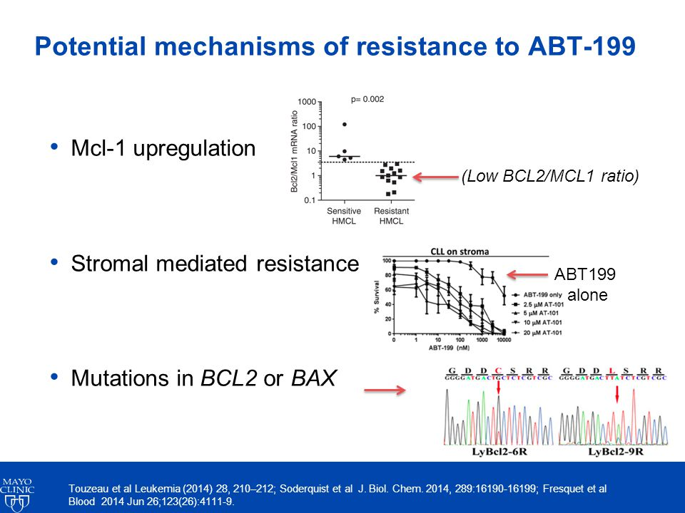 Potential mechanisms of resistance to ABT-199 Mcl-1 upregulation Stromal mediated resistance Mutations in BCL2 or BAX ABT199 alone (Low BCL2/MCL1 ratio) Touzeau et al Leukemia (2014) 28, 210–212; Soderquist et al J.