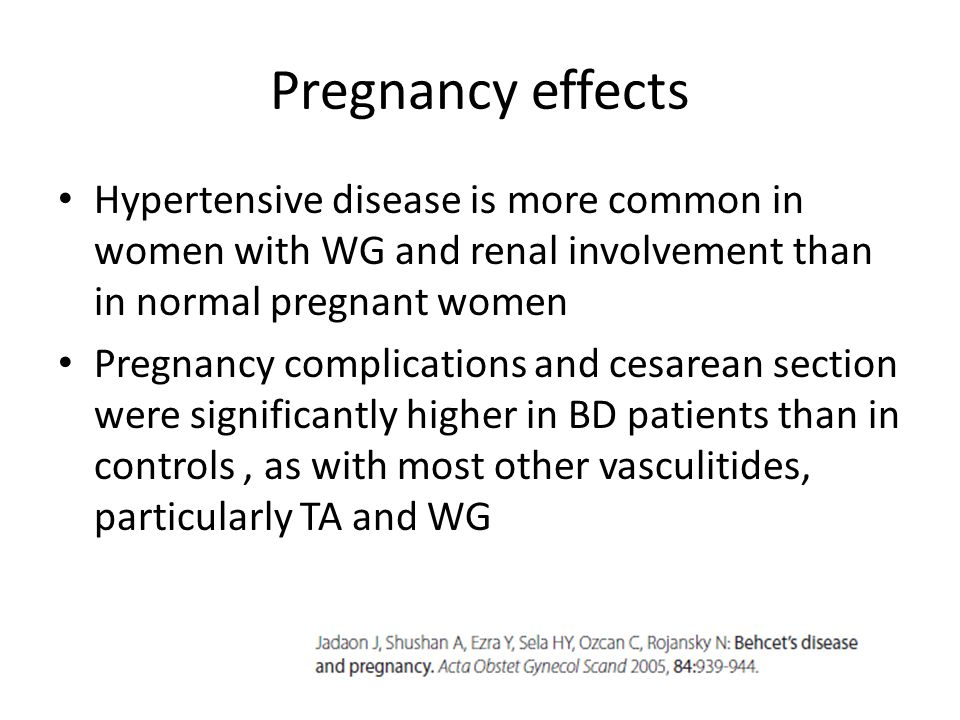 Pregnancy effects Hypertensive disease is more common in women with WG and renal involvement than in normal pregnant women Pregnancy complications and cesarean section were significantly higher in BD patients than in controls, as with most other vasculitides, particularly TA and WG