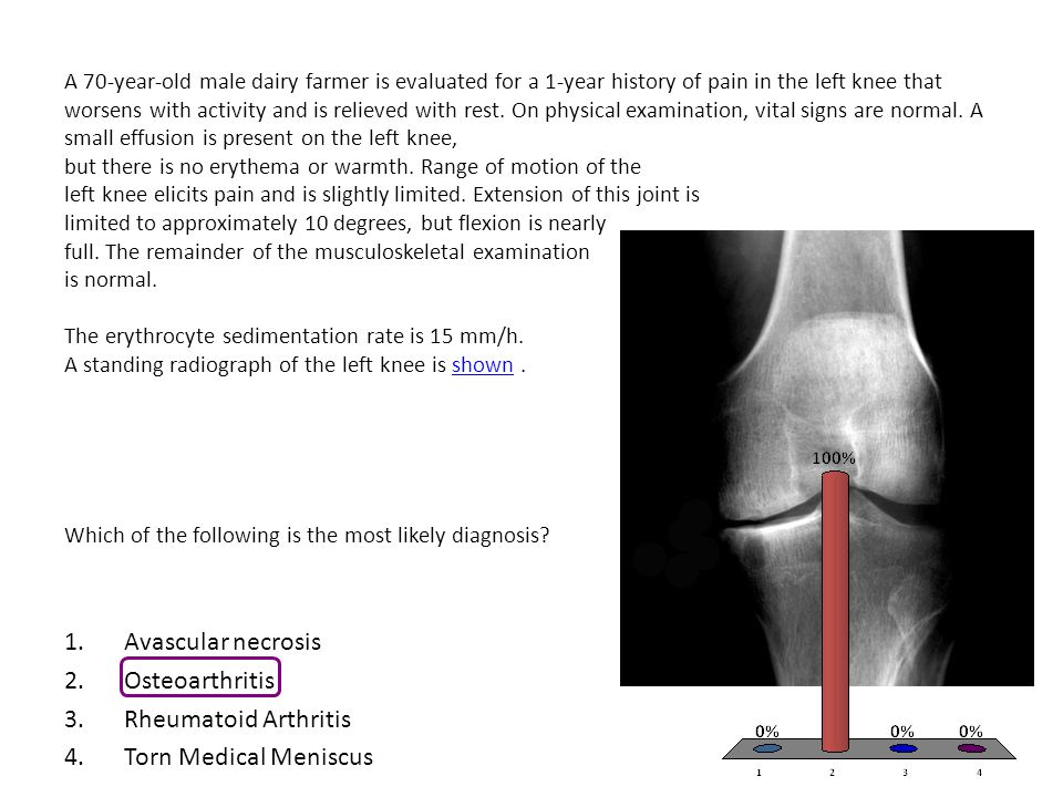 A 70-year-old male dairy farmer is evaluated for a 1-year history of pain in the left knee that worsens with activity and is relieved with rest.