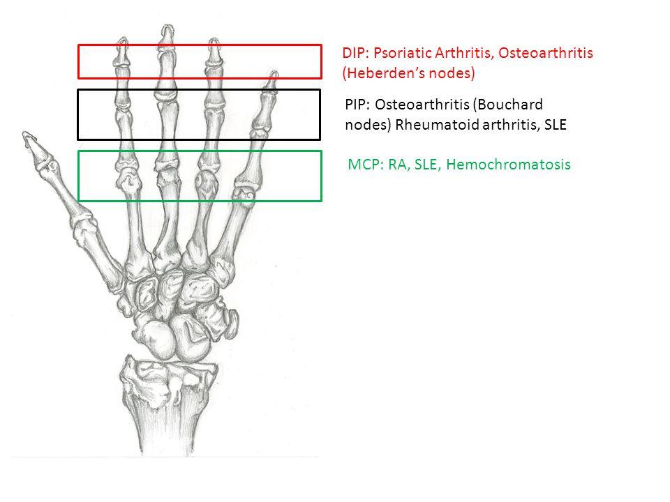 DIP: Psoriatic Arthritis, Osteoarthritis (Heberden's nodes) PIP: Osteoarthritis (Bouchard nodes) Rheumatoid arthritis, SLE MCP: RA, SLE, Hemochromatos