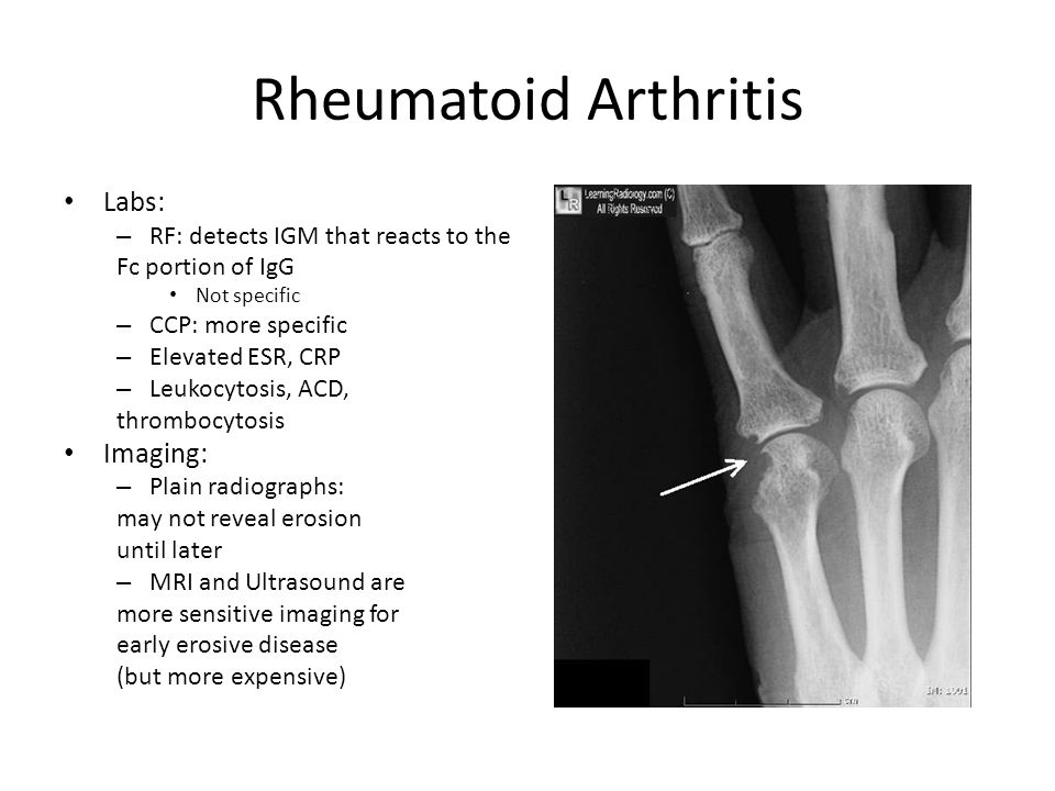 Rheumatoid Arthritis Labs: – RF: detects IGM that reacts to the Fc portion of IgG Not specific – CCP: more specific – Elevated ESR, CRP – Leukocytosis