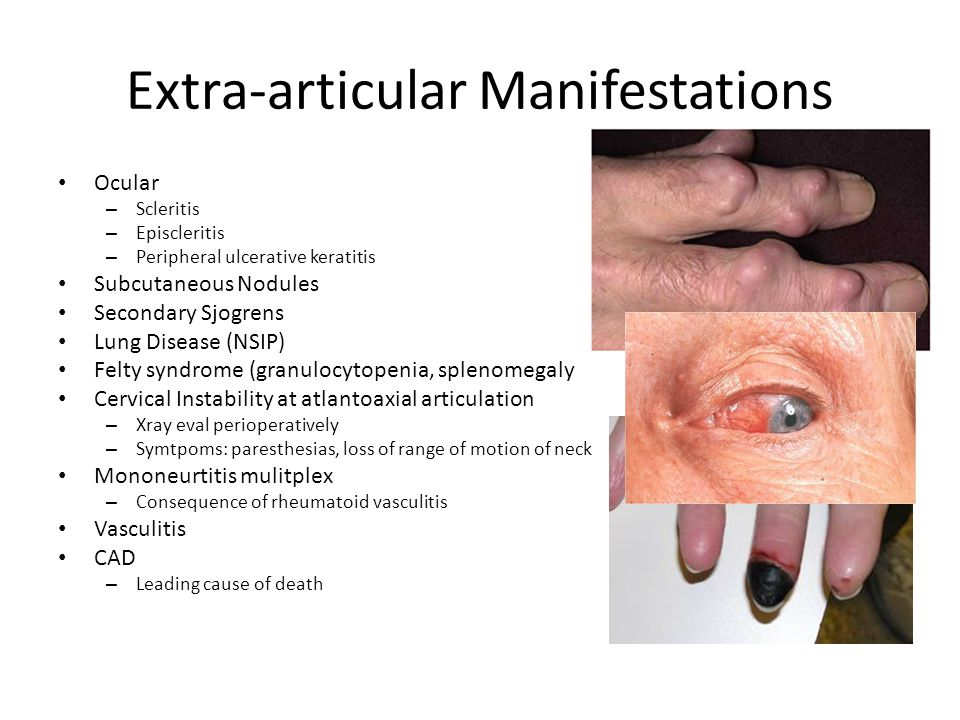 Extra-articular Manifestations Ocular – Scleritis – Episcleritis – Peripheral ulcerative keratitis Subcutaneous Nodules Secondary Sjogrens Lung Disease (NSIP) Felty syndrome (granulocytopenia, splenomegaly Cervical Instability at atlantoaxial articulation – Xray eval perioperatively – Symtpoms: paresthesias, loss of range of motion of neck Mononeurtitis mulitplex – Consequence of rheumatoid vasculitis Vasculitis CAD – Leading cause of death