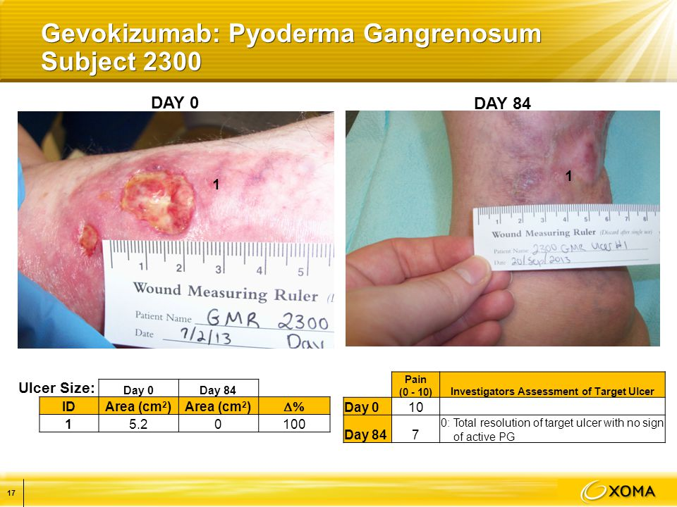 DAY 0 DAY 84 1 Gevokizumab: Pyoderma Gangrenosum Subject 2300 Day 0Day 84 IDArea (cm 2 )  15.20100 Ulcer Size: Pain (0 - 10)Investigators Assessment of Target Ulcer Day 010 Day 847 0: Total resolution of target ulcer with no sign of active PG 1 17