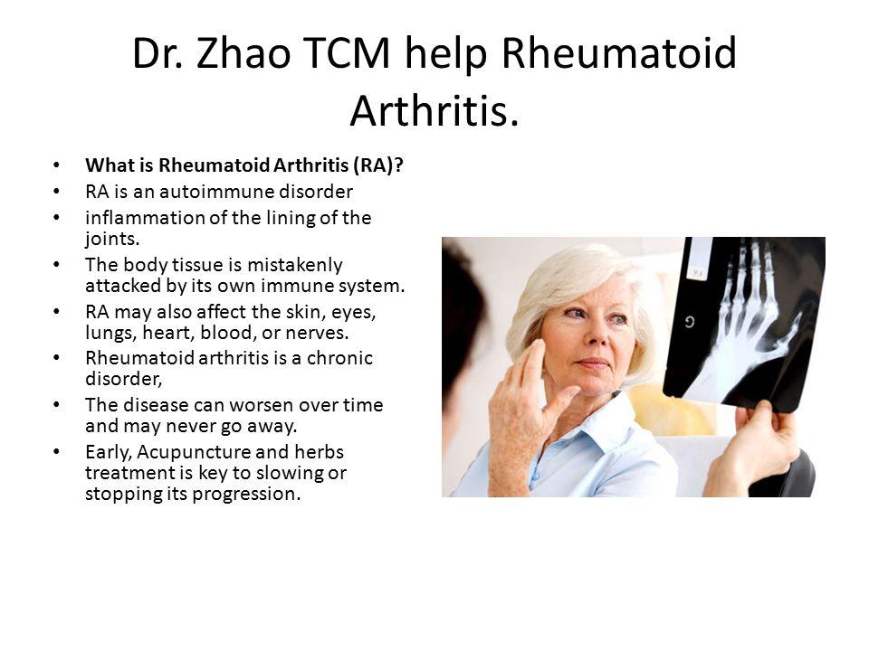 Dr. Zhao TCM help Rheumatoid Arthritis. What is Rheumatoid Arthritis (RA).