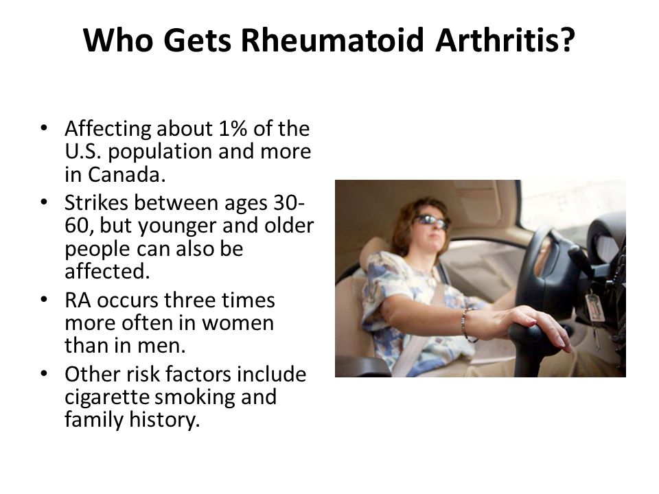 Who Gets Rheumatoid Arthritis. Affecting about 1% of the U.S.