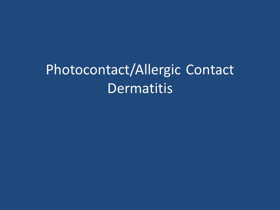 Photocontact/Allergic Contact Dermatitis