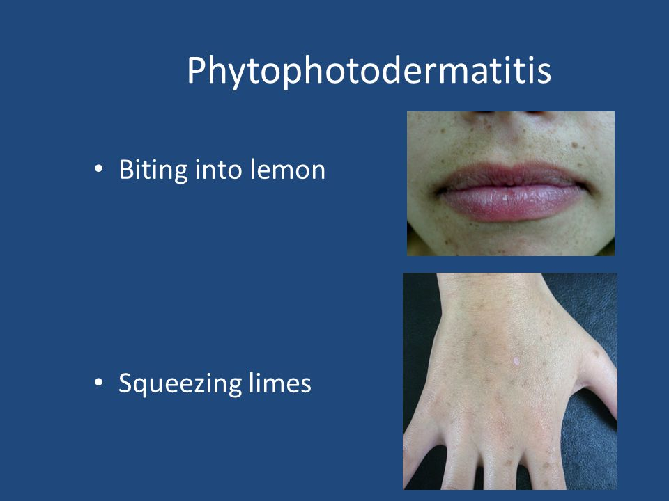 Phytophotodermatitis Biting into lemon Squeezing limes