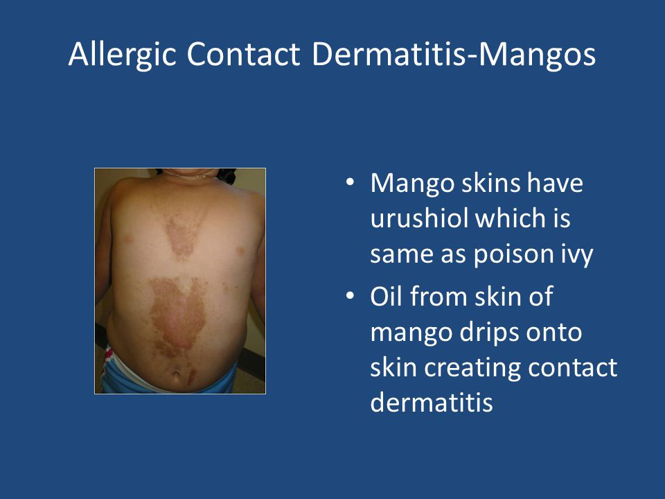 Allergic Contact Dermatitis-Mangos Mango skins have urushiol which is same as poison ivy Oil from skin of mango drips onto skin creating contact derma