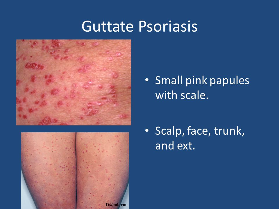 Guttate Psoriasis 2-3 wks post group A strep.Personal or family h/o psoriasis.