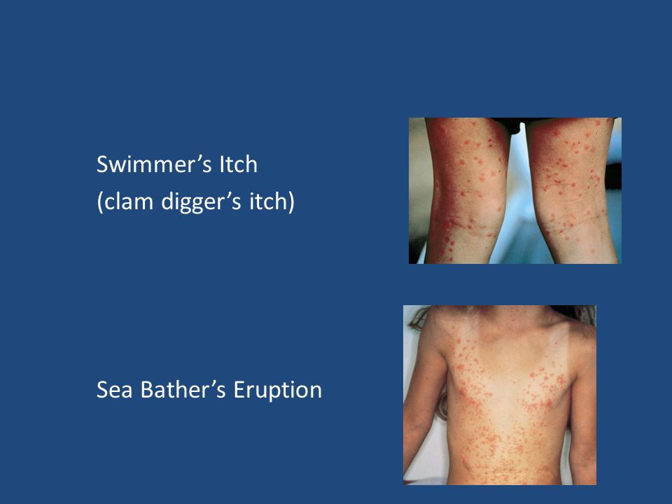 Swimmer's Itch (clam digger's itch) Sea Bather's Eruption