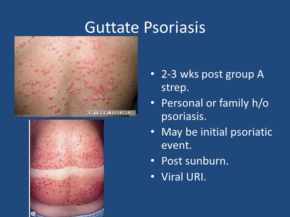 Guttate Psoriasis 2-3 wks post group A strep. Personal or family h/o psoriasis.