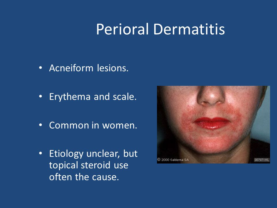 Perioral Dermatitis Acneiform lesions. Erythema and scale. Common in women. Etiology unclear, but topical steroid use often the cause.