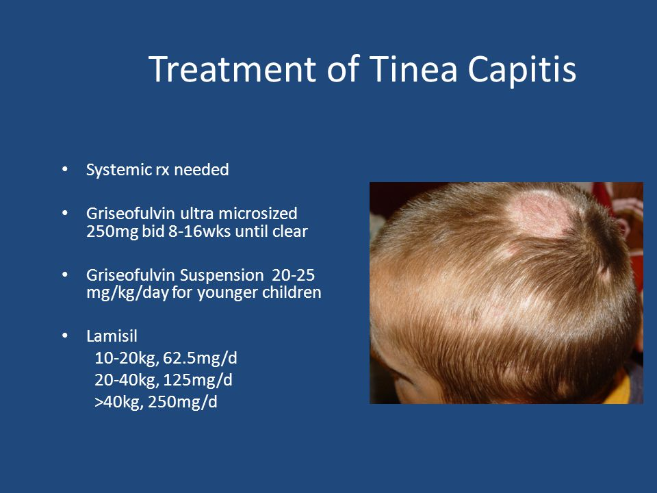 Treatment of Tinea Capitis Systemic rx needed Griseofulvin ultra microsized 250mg bid 8-16wks until clear Griseofulvin Suspension 20-25 mg/kg/day for younger children Lamisil 10-20kg, 62.5mg/d 20-40kg, 125mg/d >40kg, 250mg/d