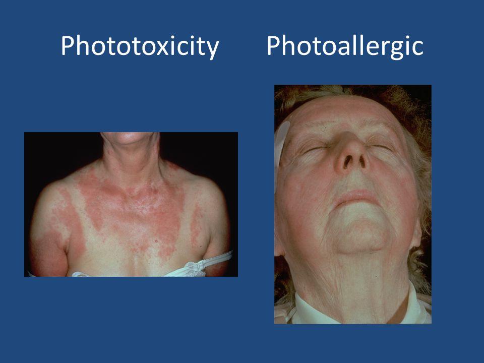 Phototoxic agents Systemic: Tetracyclines, Phenothiazines, Thiazides, Furosemide, Sulfonylureas.