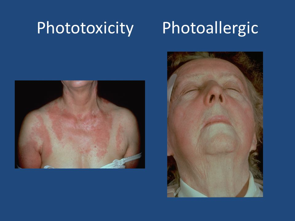 Phototoxicity Photoallergic