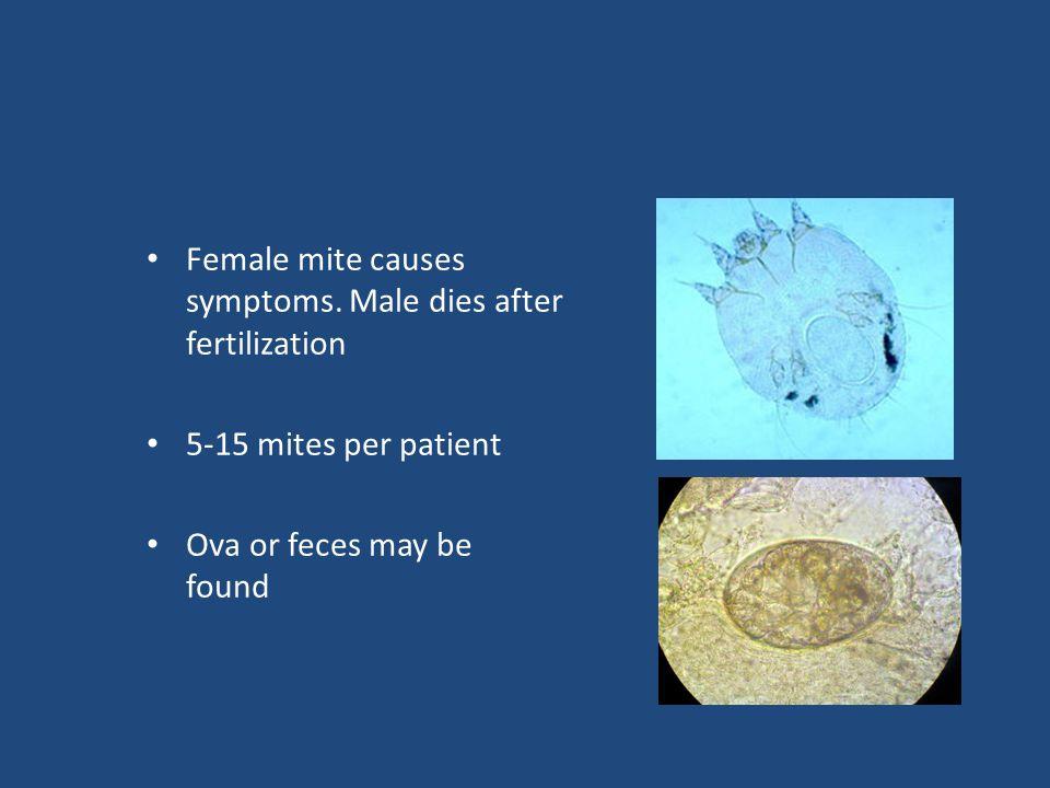 Female mite causes symptoms.