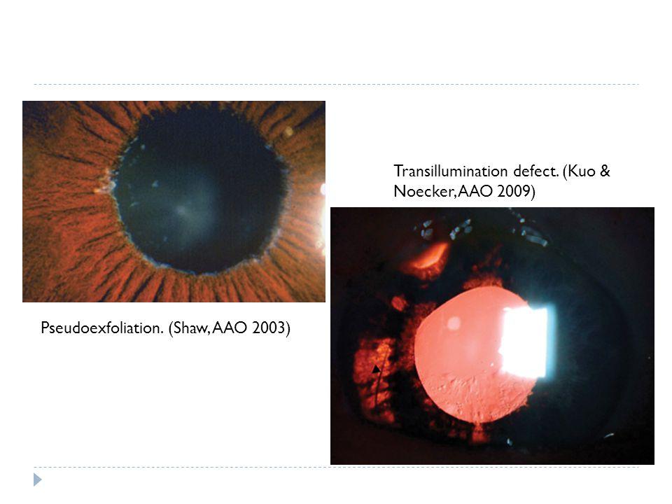 Pseudoexfoliation. (Shaw, AAO 2003) Transillumination defect. (Kuo & Noecker, AAO 2009)