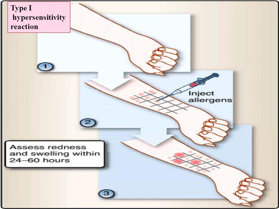 Type I hypersensitivity reaction