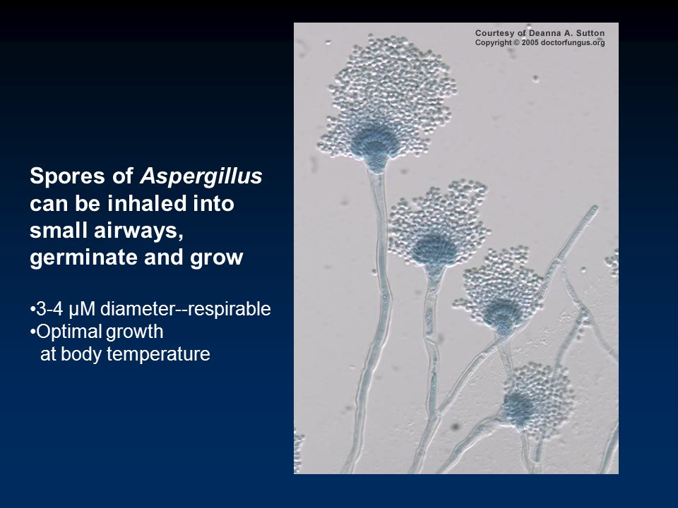 How Important is Aspergillus in Cystic Fibrosis? Richard B Moss MD Department of Pediatrics Stanford University Palo Alto CA, USA