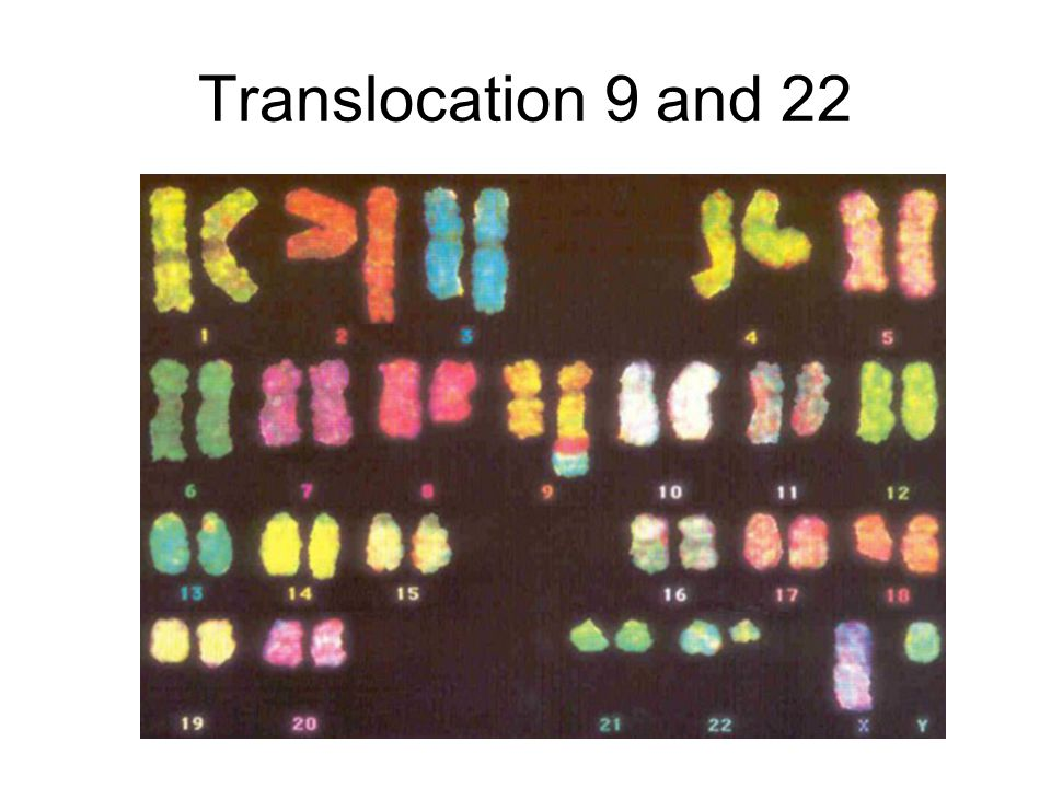 Translocation 9 and 22