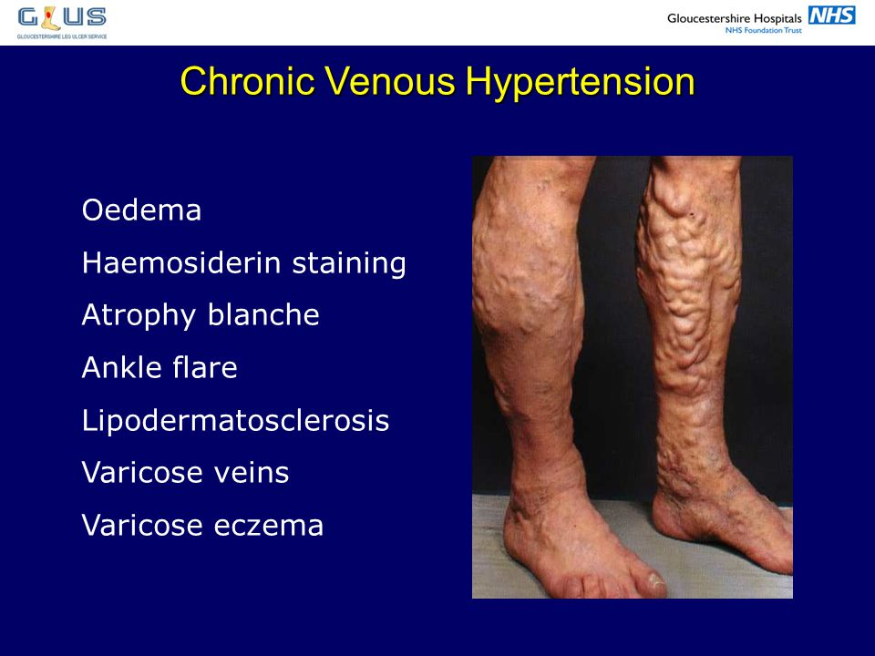 Chronic Venous Hypertension Oedema Haemosiderin staining Atrophy blanche Ankle flare Lipodermatosclerosis Varicose veins Varicose eczema