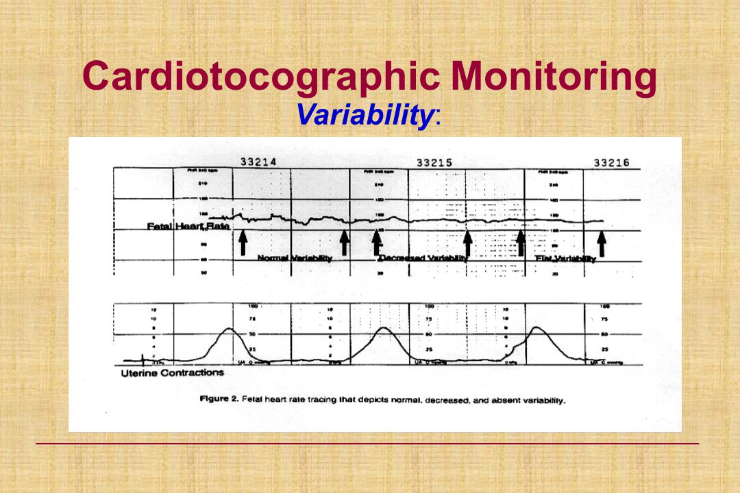 Cardiotocographic Monitoring Variability: