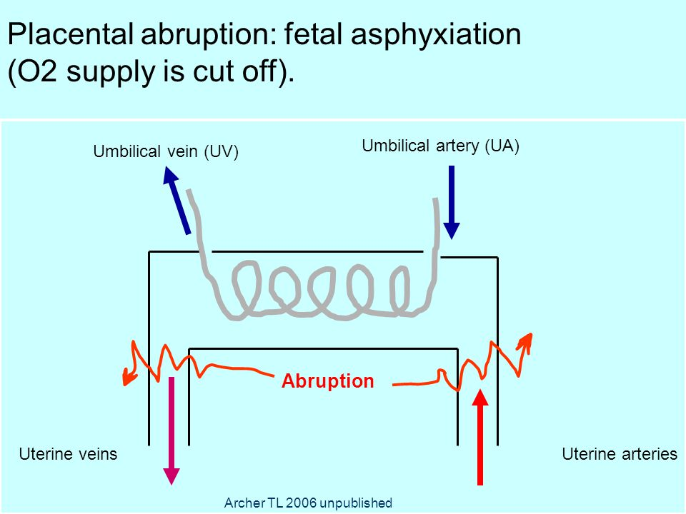 ) Umbilical artery (UA) Umbilical vein (UV) Uterine arteriesUterine veins Placental abruption: fetal asphyxiation (O2 supply is cut off).