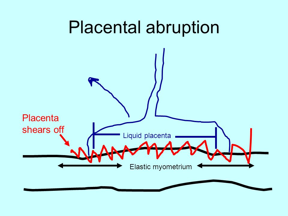 Placental abruption Elastic myometrium Liquid placenta Placenta shears off