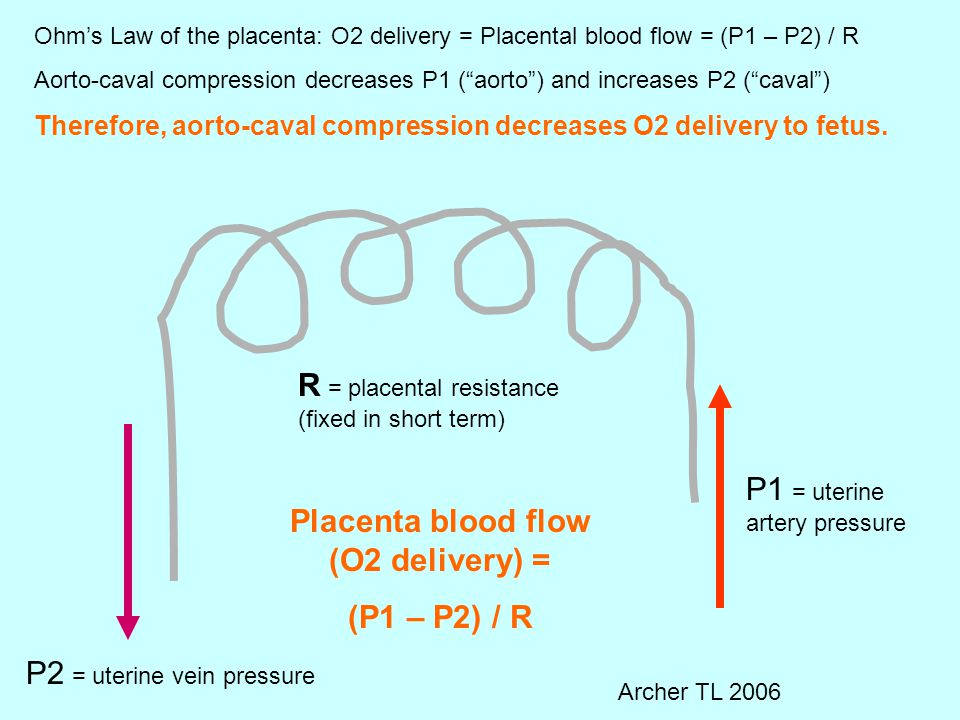 P1 = uterine artery pressure P2 = uterine vein pressure R = placental resistance (fixed in short term) Ohm's Law of the placenta: O2 delivery = Placental blood flow = (P1 – P2) / R Aorto-caval compression decreases P1 ( aorto ) and increases P2 ( caval ) Therefore, aorto-caval compression decreases O2 delivery to fetus.