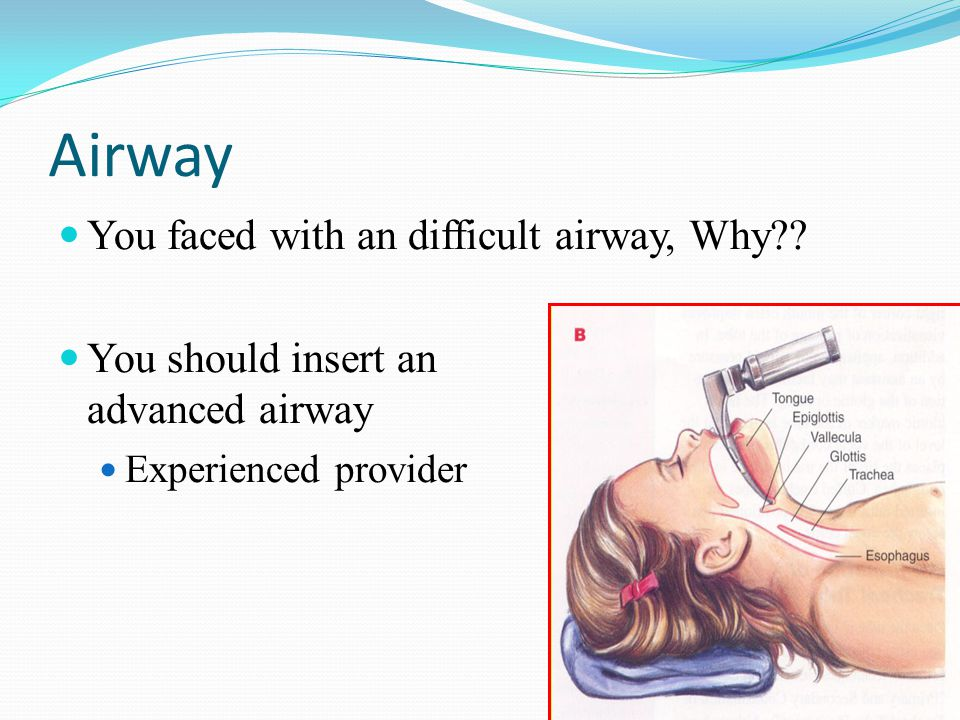 Airway You faced with an difficult airway, Why?.