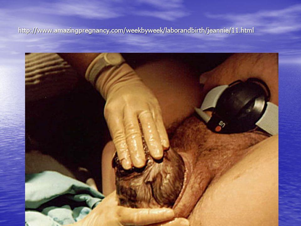 http://www.amazingpregnancy.com/weekbyweek/laborandbirth/jeannie/11.html