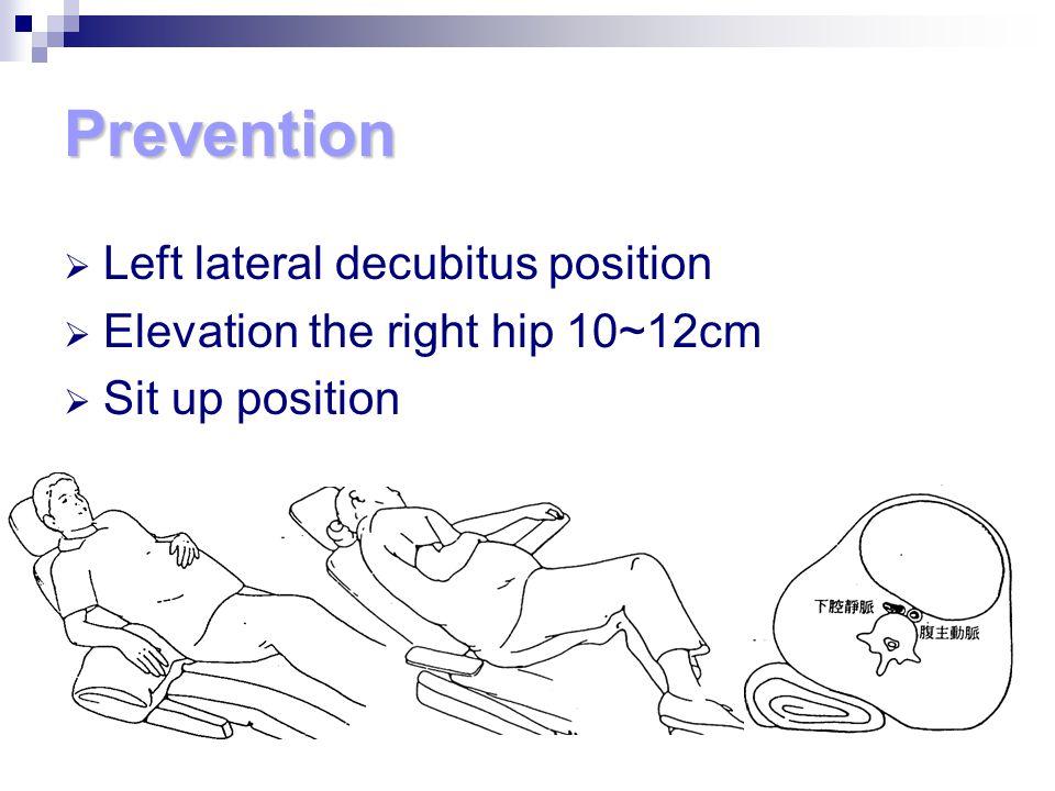 Prevention  Left lateral decubitus position  Elevation the right hip 10~12cm  Sit up position
