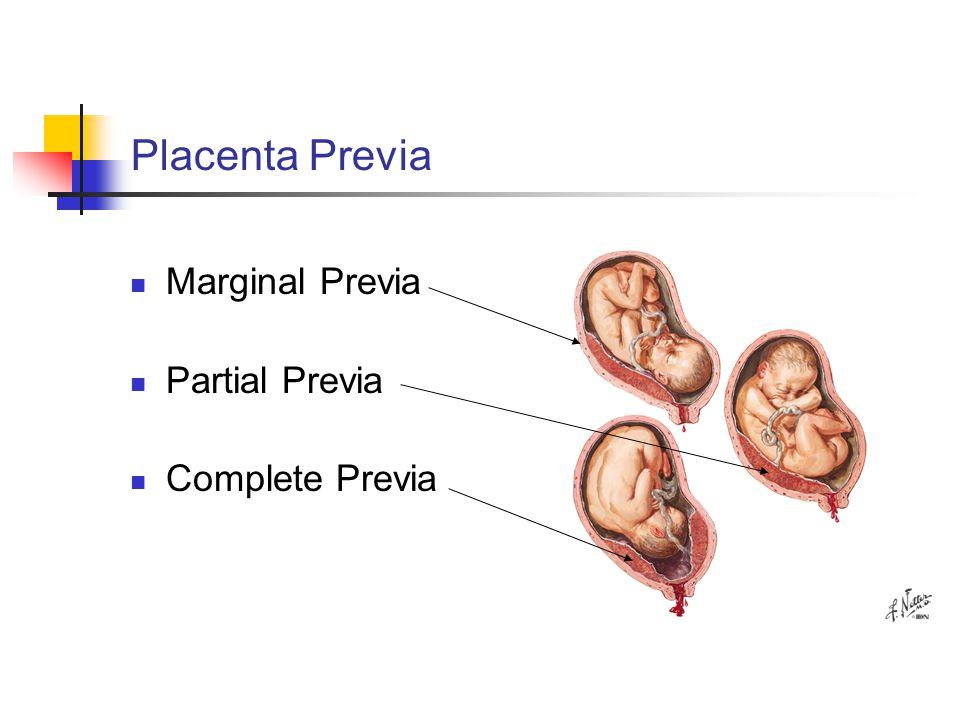 Placenta Previa Marginal Previa Partial Previa Complete Previa