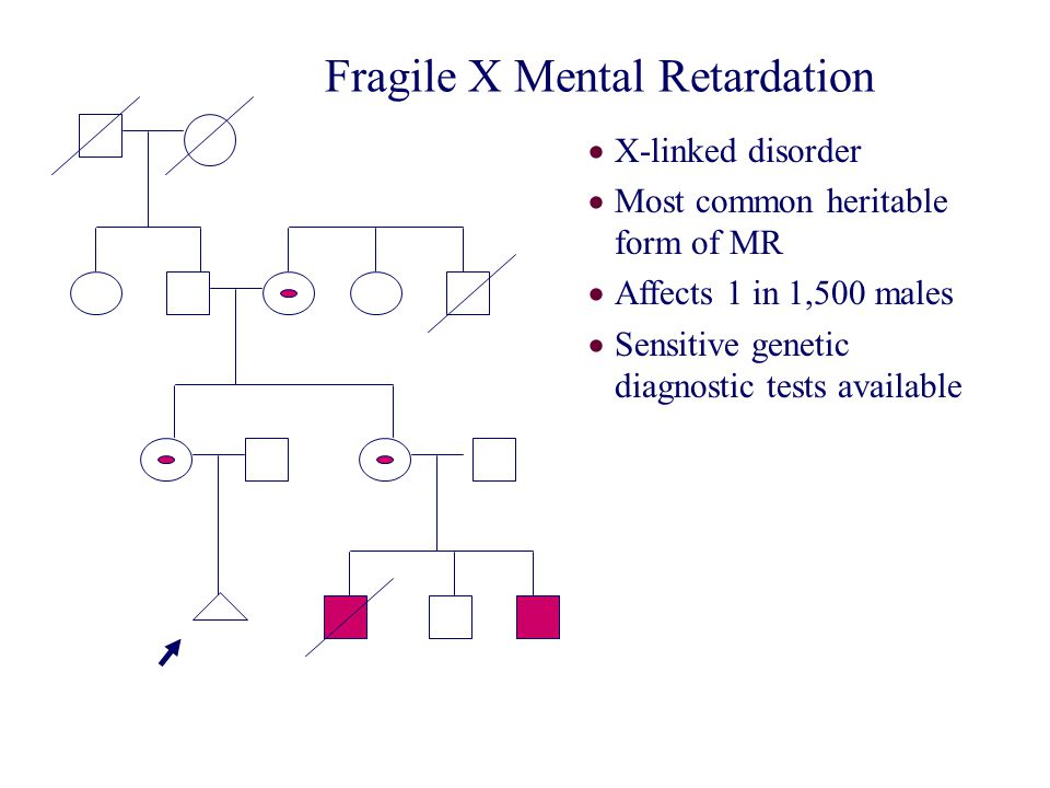 Fragile X Mental Retardation  X-linked disorder  Most common heritable form of MR  Affects 1 in 1,500 males  Sensitive genetic diagnostic tests av