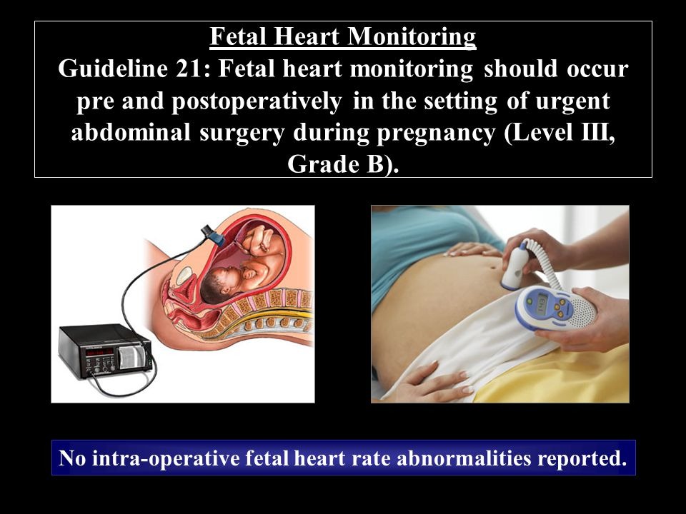 Fetal Heart Monitoring Guideline 21: Fetal heart monitoring should occur pre and postoperatively in the setting of urgent abdominal surgery during pregnancy (Level III, Grade B).