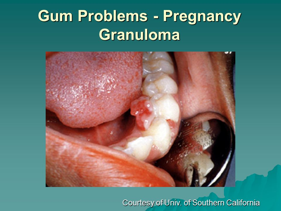 Gum Problems - Pregnancy Granuloma Courtesy of Univ. of Southern California