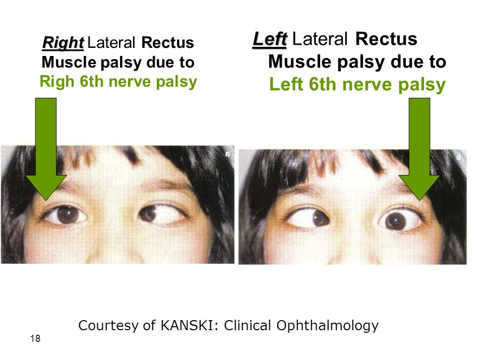 18 Left Left Lateral Rectus Muscle palsy due to Left 6th nerve palsy Courtesy of KANSKI: Clinical Ophthalmology Right Right Lateral Rectus Muscle pals