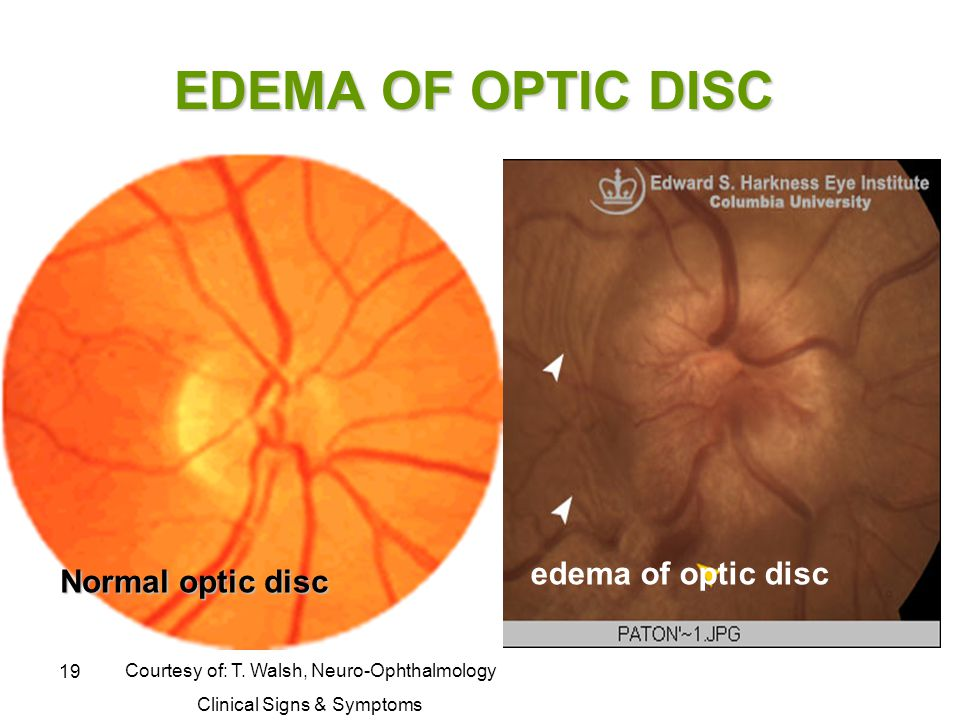 19 EDEMA OF OPTIC DISC Courtesy of: T. Walsh, Neuro-Ophthalmology Clinical Signs & Symptoms edema of optic disc Normal optic disc
