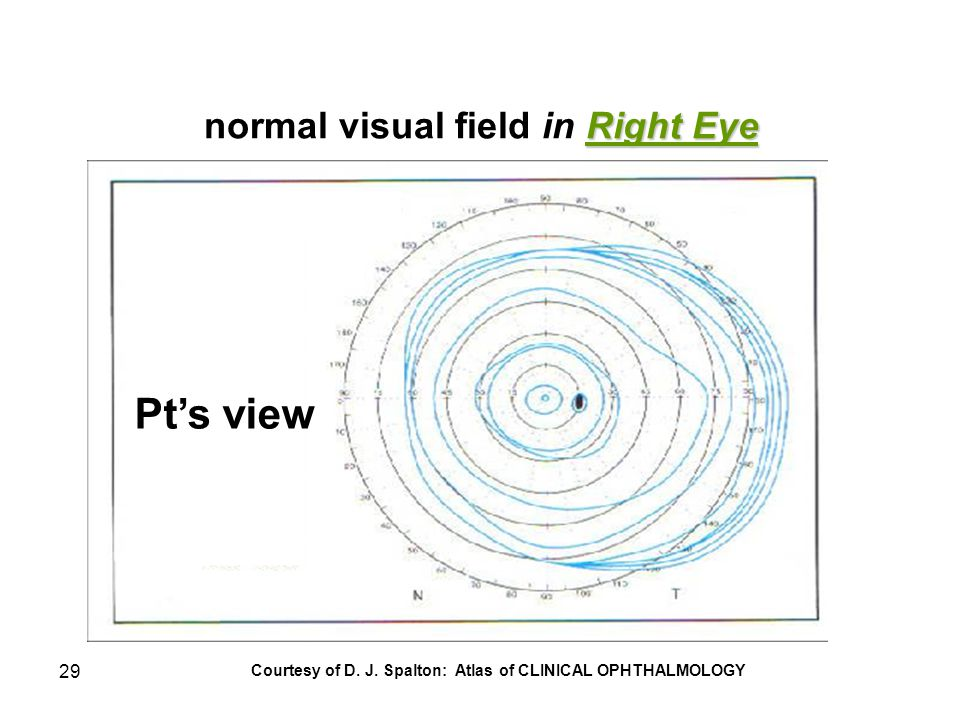 29 Right Eye normal visual field in Right Eye Courtesy of D. J. Spalton: Atlas of CLINICAL OPHTHALMOLOGY Pt's view