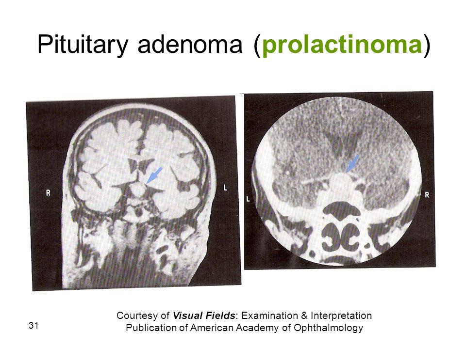 31 Pituitary adenoma (prolactinoma) Courtesy of Visual Fields: Examination & Interpretation Publication of American Academy of Ophthalmology