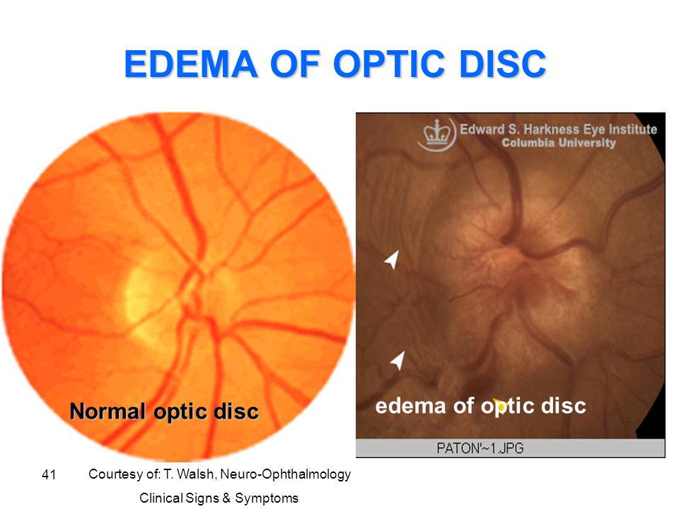 41 EDEMA OF OPTIC DISC Courtesy of: T. Walsh, Neuro-Ophthalmology Clinical Signs & Symptoms edema of optic disc Normal optic disc