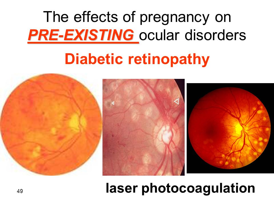 49 PRE-EXISTING The effects of pregnancy on PRE-EXISTING ocular disorders Diabetic retinopathy laser photocoagulation