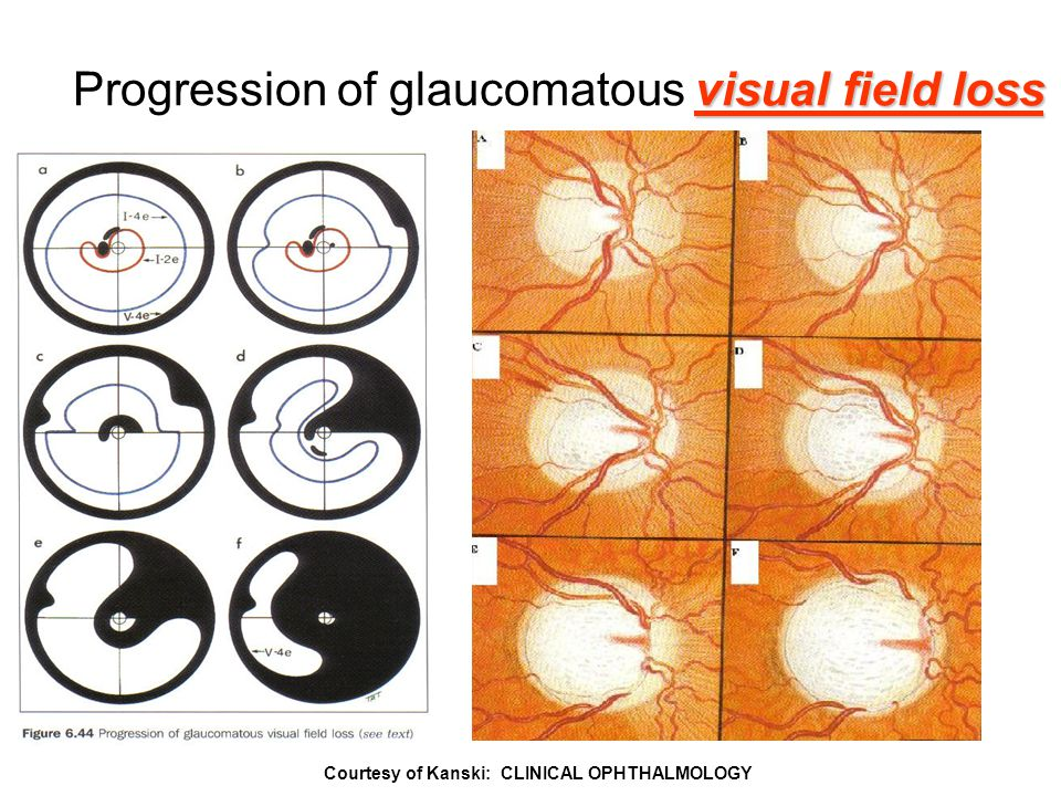 59 Courtesy of Kanski: CLINICAL OPHTHALMOLOGY visual field loss Progression of glaucomatous visual field loss
